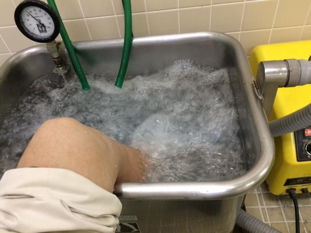 ギブスの外れた左足を、お湯に15分漬けておきます。 プチ入浴中の左足です。